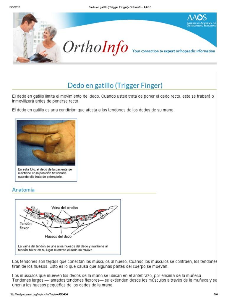 Dedo en Gatillo (Trigger Finger)-OrthoInfo - AAOS