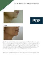 Tratamientos Faciales De Belleza Para El Rejuvenecimiento Facial.