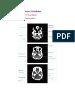 Anatomi Dari Gambaran CT Scan Kepala