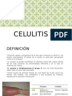 celulitis displasia