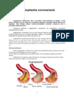 Angioplastia Coronariană