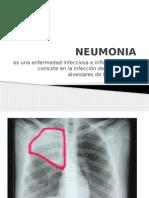 Neumonia (1)