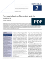 Treatment planning of implants in posterior.pdf