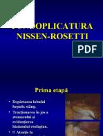 Fundoplicatura Nissen