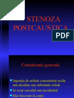 stenoza postcaustica