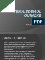Edemul-Quincke
