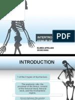 Intertrochanter Femur Fracture