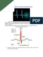 Belajar Baca EKG