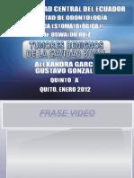 Diapositivas Neoplasias Benignas