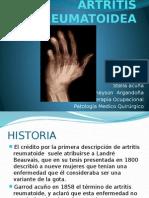 ARTRITIS_REUMATOIDEA