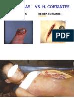 Lesiones Cortantes Ucv 2014