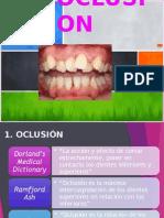 Maloclusion Dentales