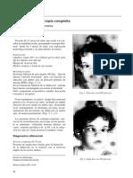 Dialnet-SindromeDeLaEsotropiaCongenita-2652909