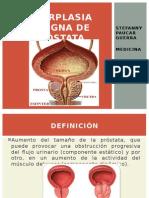 Hiperplasia benigna de próstata.pptx