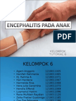 Encephalitis Pada Anak
