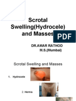Scrotal Swelling(Hydrocele) and Masses