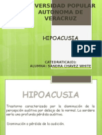 hipoacusia exposicion