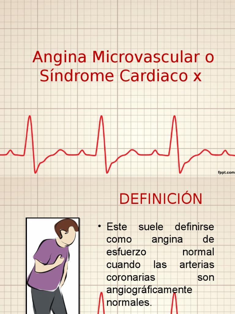 Microarterial angina