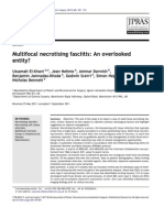 Multifocal Necrotising Fasciitis an Overlooked Entity