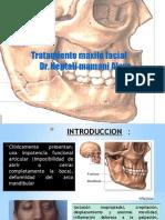 Tratamiento de Las Fracturas Maxilares lefort