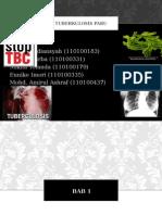 Tuberculosis Case Report