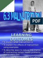 Malnutrition Edited