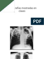 Radiografias