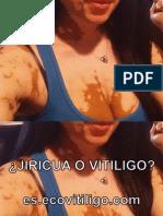 ¿Jiricua o Vitiligo?