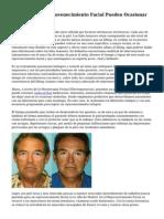 Inyecciones De Rejuvenecimiento Facial Pueden Ocasionar Ceguera.