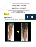 Knee Arthrocentesis Nagdev