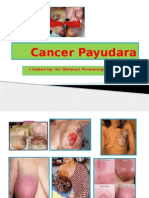 Cancer Payudara