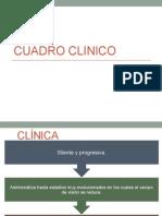 Diagnostico y Tratamiento  de Glaucoma