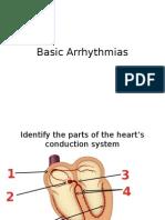 Basic Arrhythmias_Moving Exam