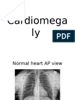 Cardiomegaly, Radiology