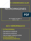 Neuroimagenes en Accidente Cerebrovascular