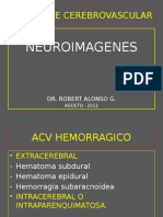 Neuroimagenes en Accidente Cerebrovascular