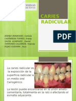 CARIES-RADICULAR-2 expo.pptx
