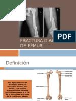 Fractura Diafisiaria de Fémur