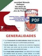 Cirugia Osea Periodoncia
