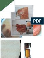 hemophyllus influenzae