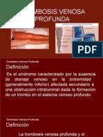 trombosis Venosa Profunda.pptx