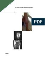Definisi osteosarkoma