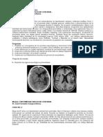 Taller de Casos Clínicos Enf. Vascular Cerebral