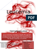 245797468-Leucemias.pptx