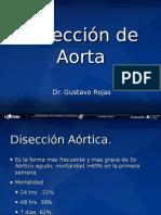 ENARM diseccion aortica