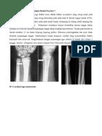 Referat Orthopedi