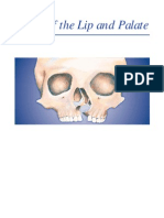 Clefts of the Lip and Palate