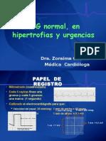 Curso ECG_3 Normal, Hipertrofias y Urgencias