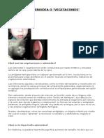 Hipertrofia Adenoidea o