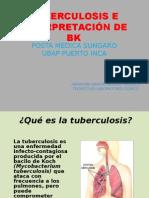 tuberculosis e interpretacin de bk